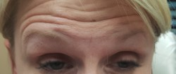 Woman's forehead before Botox