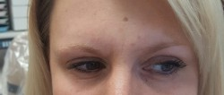 Smooth forehead after Botox treatment