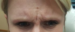 Woman's forehead after Botox