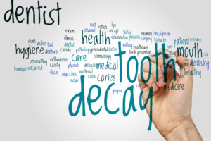 Tooth decay word cloud